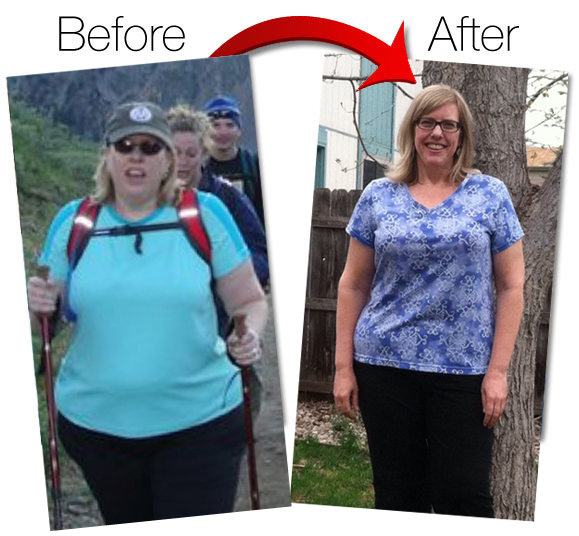mary-dolce-before-and-after-weight-loss2
